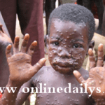 List Of Common Disease And Infection In Nigeria – Control Measures