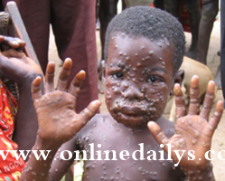 List Of Common Disease And Infection In Nigeria - Control Measures