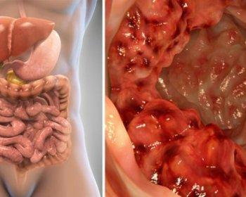 Simptome cancer colon