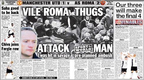Onside-founder-James-Fletcher-attacked-by-Roma-fans-in-Rome