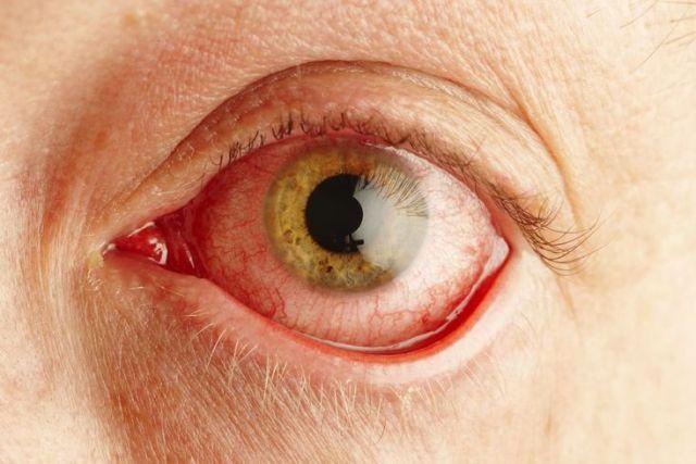 olhos-avermelhados
