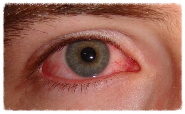 olhos-vermelhos-o-que-pode-ser