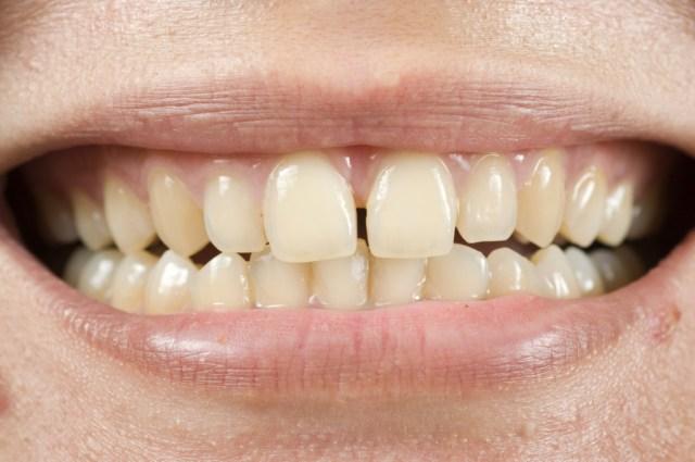 dentes-amarelos