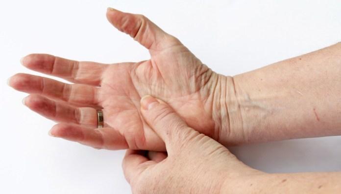 sintomas da esclerodermia