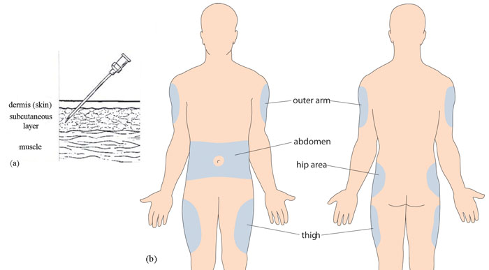 Subq Injection Sites Diagram