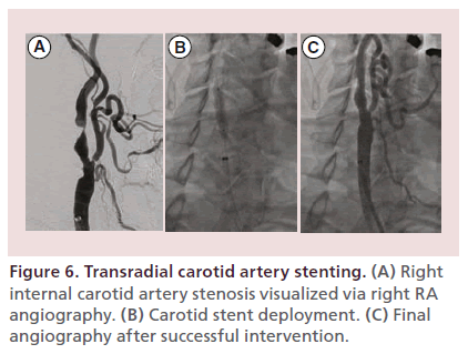 Transradial Peripheral Vascular Intervention Challenges