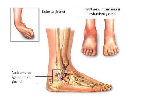 umflarea piciorului după ruperea gleznei dureri de picior și gleznă mai rele noaptea