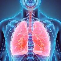 Casa Sollievo in prima linea nella ricerca contro il tumore al polmone
