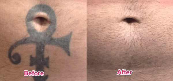 neatcell picosecond pen before and after