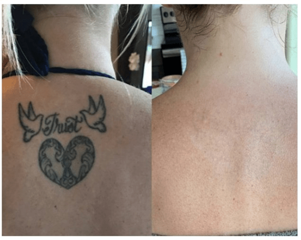 back tattoo removal before and after