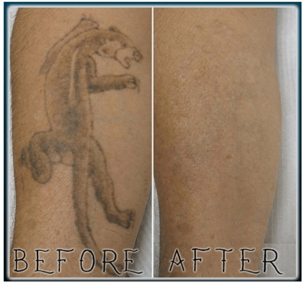 forearm tattoo removal before and after