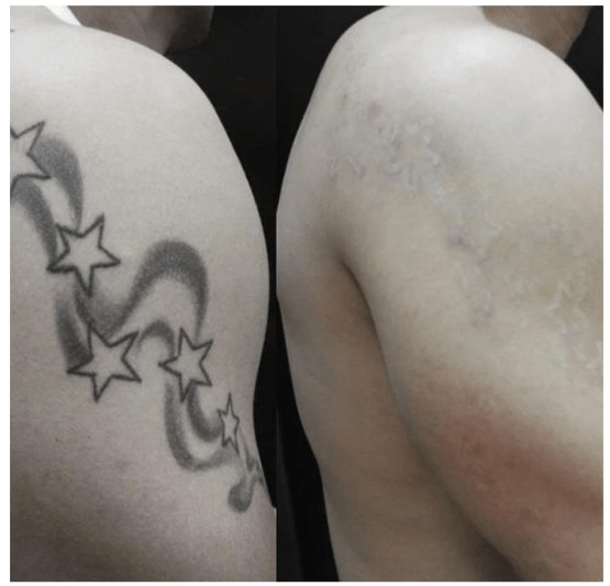 shoulder tattoo removal before and after