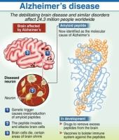 Expert links Alzheimer's to meat consumption