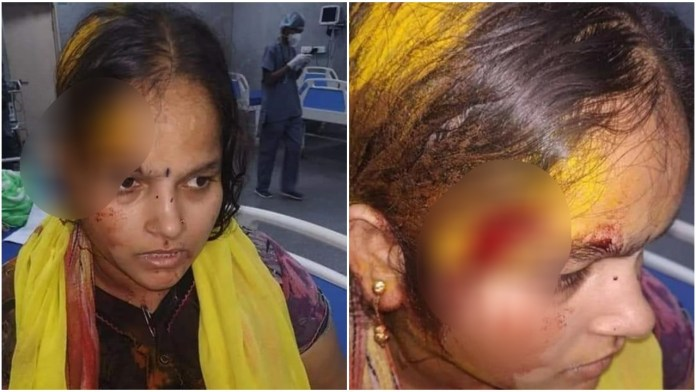 Hyderabad woman assaulted by neighbour 'Yesu' for doing puja in a temple: Read details