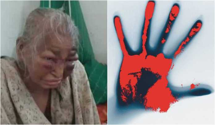 The bruised face of an elderly woman in Bengal is a reminder of another brutal incident, the Sainbari massacre