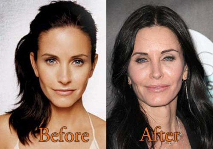 courteney cox says she regrets plastic surgery (video) - opposing views