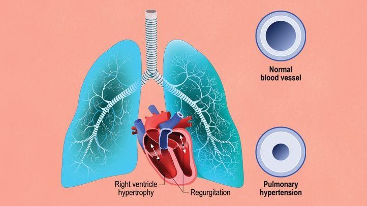 pulmonary arterial hypertension related to ED