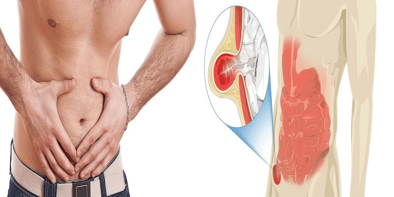 5 Reasons Why You Have Hernia