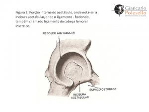 Porção interna do acetábulo, onde nota-se a inscisura acetabular, onde o ligamento, Redondo, também chamado ligamento da cabeça femoral insere-se.