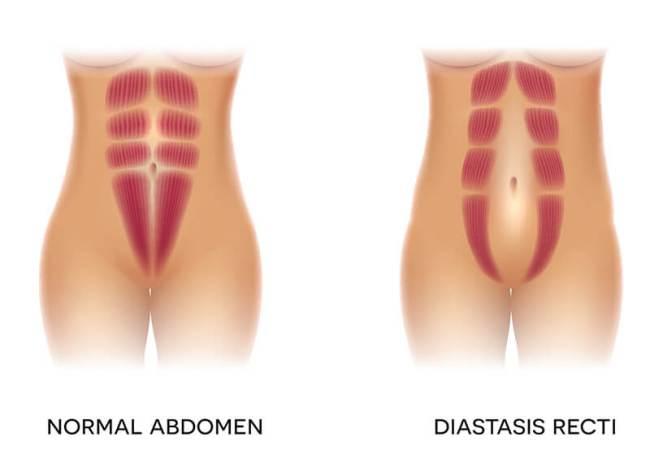 Diastasis recti fingers gap at the linea alba
