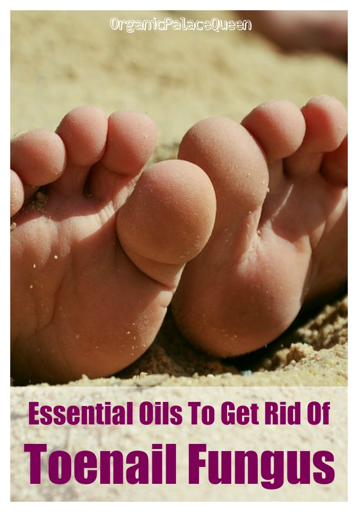 Essential Oils Good For Toenail Fungus - Organic Palace Queen
