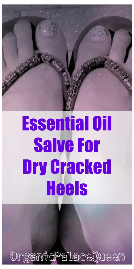 essential oil recipe for cracked heels