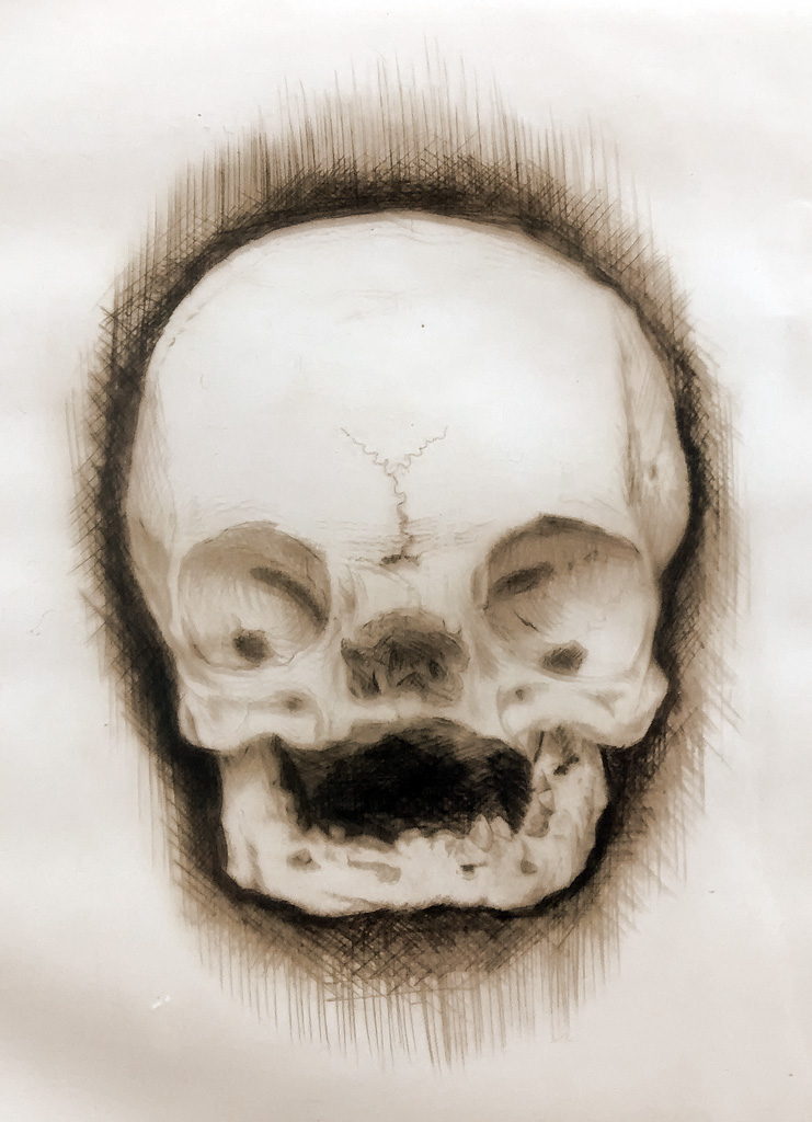Skull drypoint print (from the collection of Surgeon's Hall, Edinburgh)
