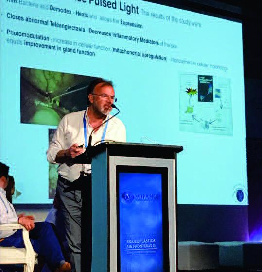 Luce pulsata e Radiofrequenza per curare occhio secco e blefarite (IPLRF) 5