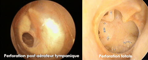 perforations du tympan