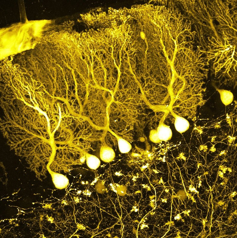 An image of Purkinje cells in the cerebellum