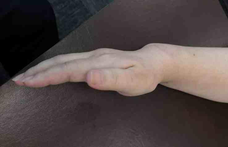 Treatment of Distal Radius Malunion