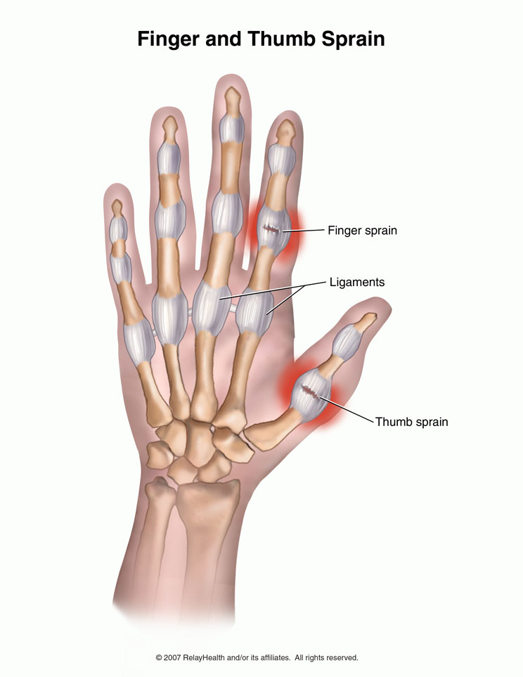 Thumb Sprain Ulnar Collateral Ligament