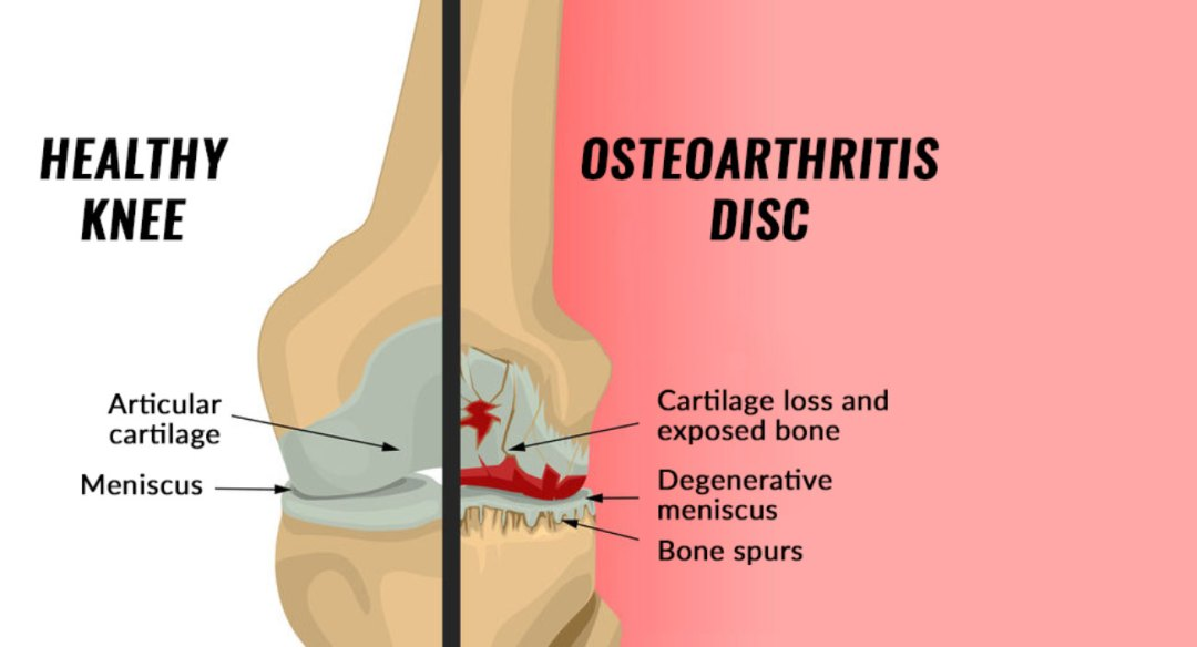 Diagram showing a Healthy Knee next to a knee with Osteoarthritis.