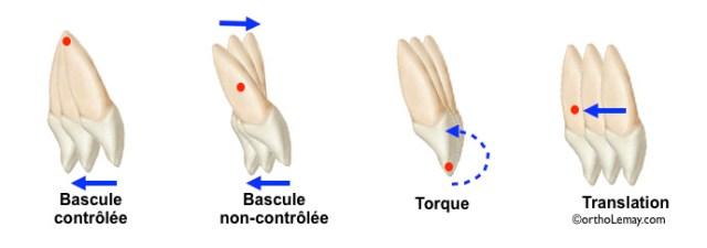 """Résultat de recherche d'images pour """"torque en orthodontie"""""""