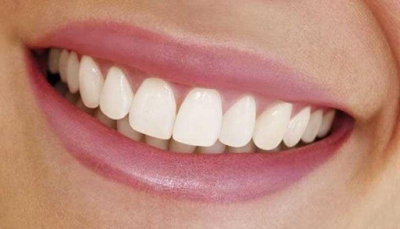 Αλόη για κατάλευκα δόντια