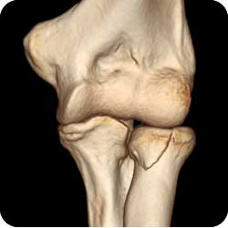 Radial Head Fractures || Orthopaedic Surgery