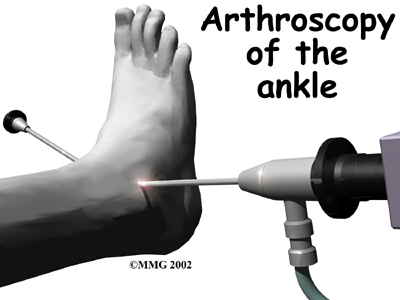 ankle fusion surgery 01