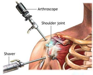 Arthroscopy in Singapore