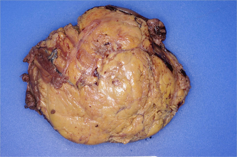 Hibernoma Portnotes Orthopaedicsone