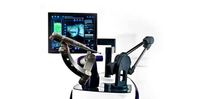 FDA Clears Sculptor Robotic Guidance Arm For Unicompartmental Knee Replacement Surgery