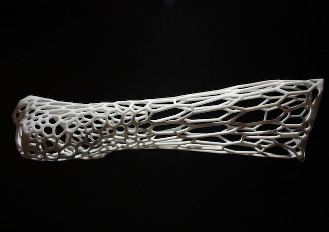 3-D Printing for Patient Specific Medical Devices Will Reach $1B by 2020