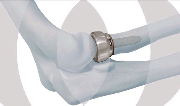 DePuy Synthes Brings Radial Head Prosthesis System to US Market