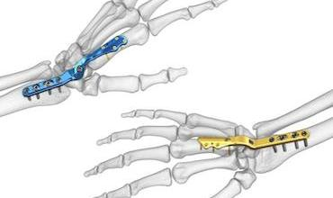 Photo of Acumed® Introduces New Solution to Help Treat Post-Traumatic Arthritis: Total Wrist Fusion Plating System
