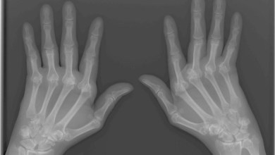 Photo of PROTEIN PROTECTS AGAINST ARTHRITIS-RELATED BONE LOSS