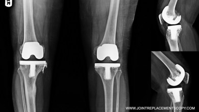 Photo of STUDY SHOWS LESS PAIN AFTER JOINT REPLACEMENT SURGERY