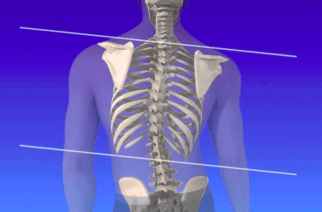 Chêneau bracing associated with halting curve progression for adolescent idiopathic scoliosis