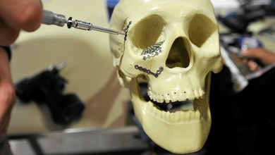 Photo of Global Cranio Maxillofacial Implants Market: Asia Expected to lead the Market – DePuy Synthes, a Johnson & Johnson company among the major Market Players