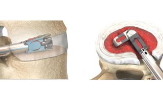 EOI Announces that Dr. Frank Philips has Selected the FLXfit™ 3D Expandable Cage as a Major Alternative for TLIF Fusion Cases