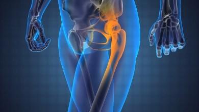 Photo of Minimally Invasive Hip Surgery Isn't Always the Right Choice