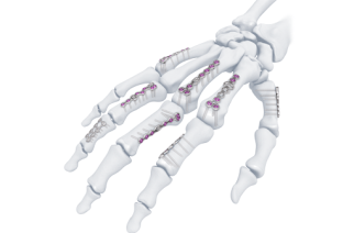 New Hand System From DePuy Synthes Companies Designed to Address Patient and Surgeon Needs Through Innovation and Versatility